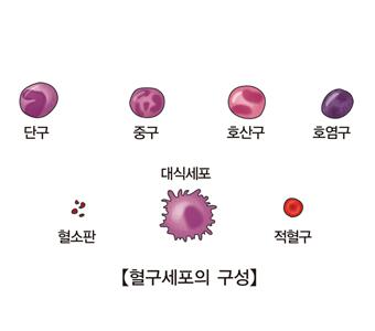 특발성 혈소판 감소성 자반증
